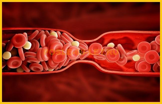 нормальный холестерин у женщин после 60 лет