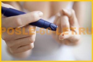 признаки сахарного диабета у женщин после 60