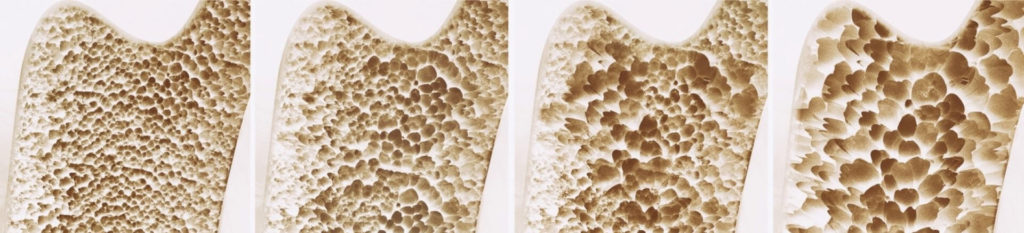 Остеопороз разрушение костей